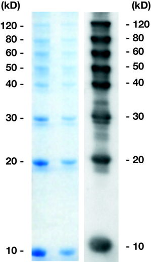 Set of protein marker and antibody for gel and Western-Blot.